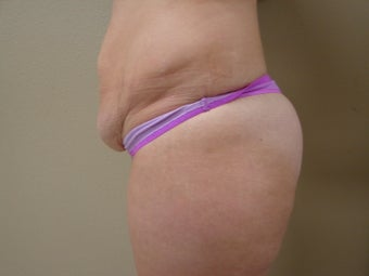 Skin Only Tummy Tuck 1004761