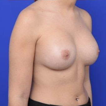 28 year old woman treated with Breast Augmentation after 3670093