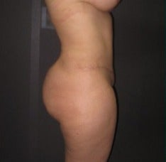 18-24 year old woman treated with Tummy Tuck after 2078969