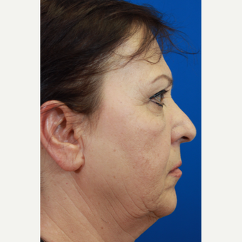 55-64 year old woman treated with Rhinoplasty and septoplasty before 3215106