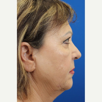 55-64 year old woman treated with Rhinoplasty and septoplasty after 3215106