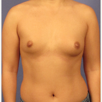 25-34 year old man treated with Breast Augmentation before 3095775