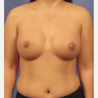25-34 year old man treated with Breast Augmentation after 3095775