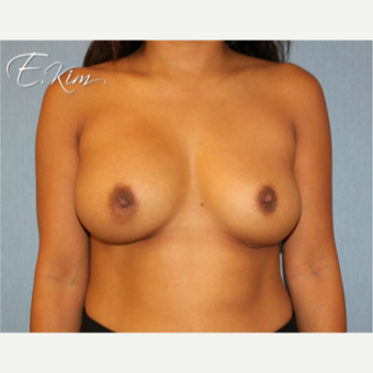 25-34 year old woman treated with Breast Implant Revision before 3102532