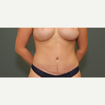 25-34 year old woman treated with Tummy Tuck after 3630208