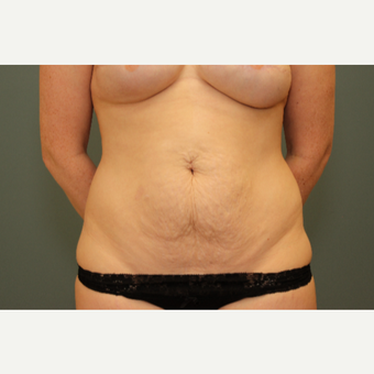 25-34 year old woman treated with Tummy Tuck before 3630208