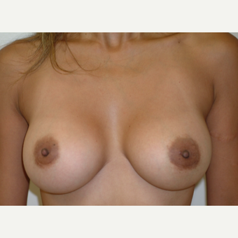 25-34 year old woman treated with Breast Implants after 3742997