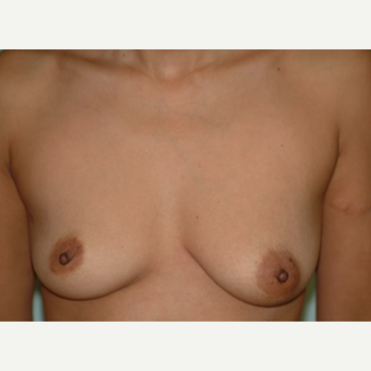 25-34 year old woman treated with Breast Implants before 3742997
