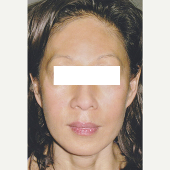 50 year old woman treated with Pico Laser Treatment on Pigmentation after 3056069