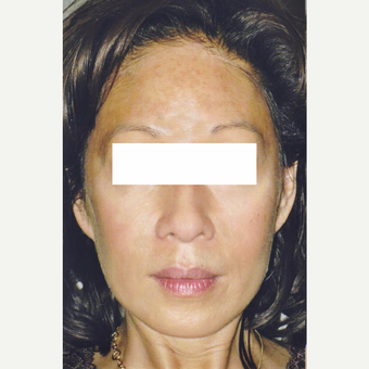 50 year old woman treated with Pico Laser Treatment on Pigmentation before 3056069