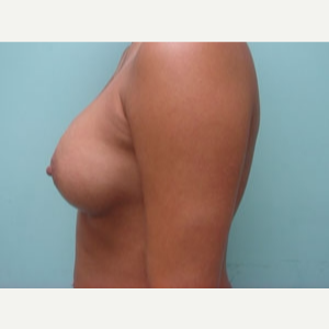 35-44 year old woman treated with Breast Augmentation after 3168200