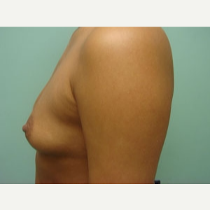 35-44 year old woman treated with Breast Augmentation before 3168200
