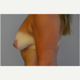 Breast Lift with Implants before 3058195