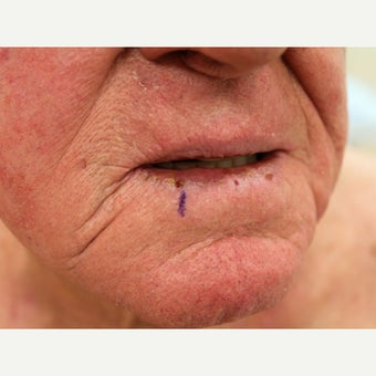 Lip Cancer Treated with Erbium Laser before 2010526
