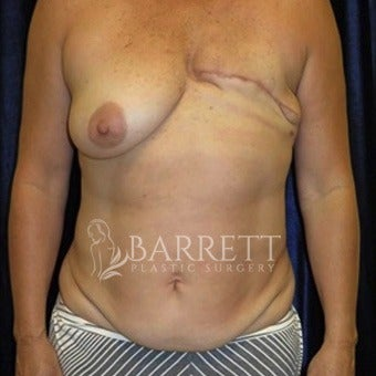 45-54 year old woman treated with Breast Reconstruction before 1983053