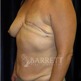 45-54 year old woman treated with Breast Reconstruction 1983053