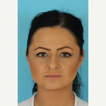 25-34 year old woman treated with Rhinoplasty before 3691262