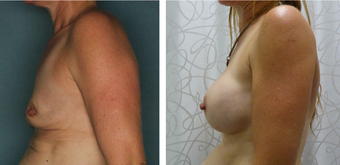 45-54 year old woman treated with Breast Augmentation before 3052712