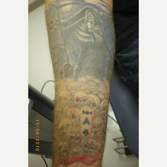 35-44 year old man treated with Tattoo Removal before 3075338