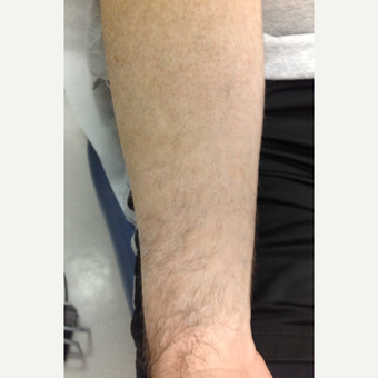 35-44 year old man treated with Tattoo Removal after 3075338