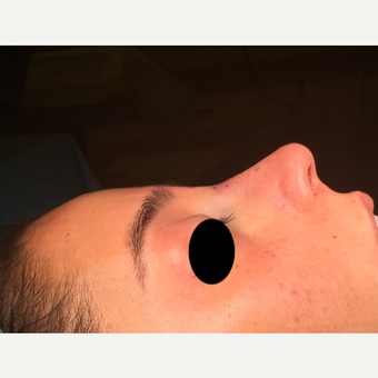 25-34 year old woman treated with Rhinoplasty after 3211345