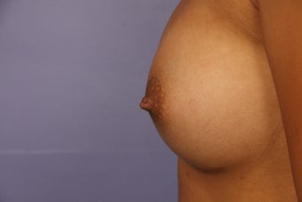 Inverted Nipple Repair after 692987