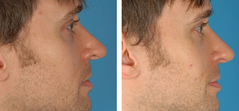 Revision Rhinoplasty before 1208290