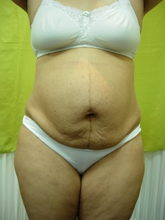 40 years female underwent tumescent liposuction along with Tummy Tuck before 929398