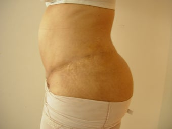 40 years female underwent tumescent liposuction along with Tummy Tuck 929398
