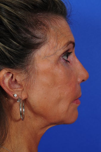 Revision Rhinoplasty 322728
