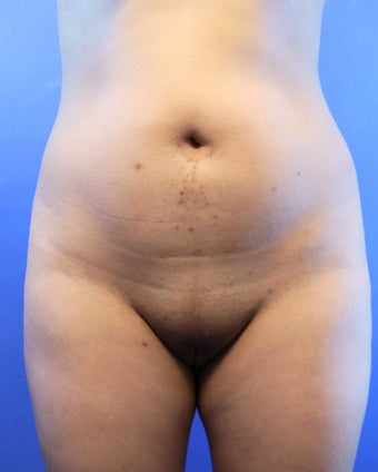 26 Year Old Woman Had Laser Liposuction  before 1166594