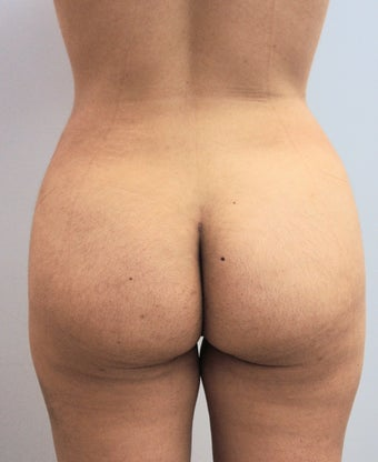 26 Year Old Woman Had Laser Liposuction  1166594