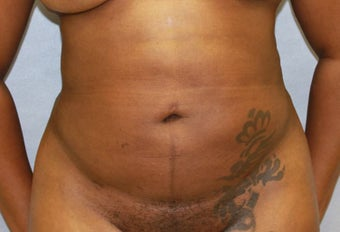 38 year old mother of one treated with liposuction to midsection