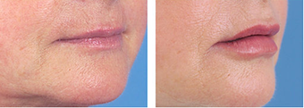 Lip Augmentation after 253984