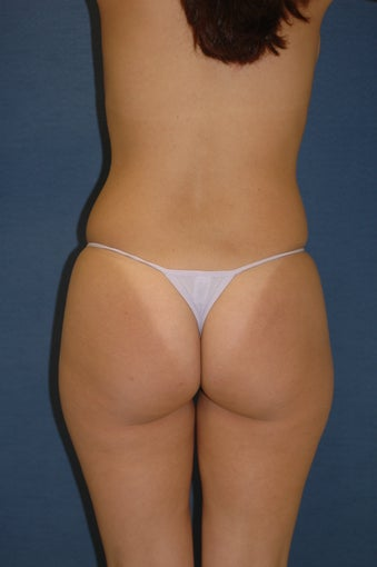 Brazilian Buttock lift before 525440