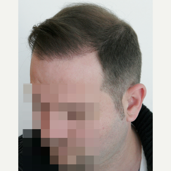 25-34 year old man treated with FUE Hair Transplant after 3258301