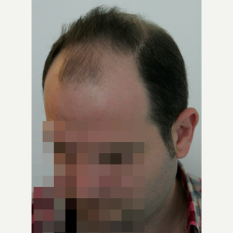 25-34 year old man treated with FUE Hair Transplant before 3258301