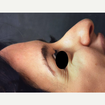 25-34 year old woman treated with Rhinoplasty before 3211380