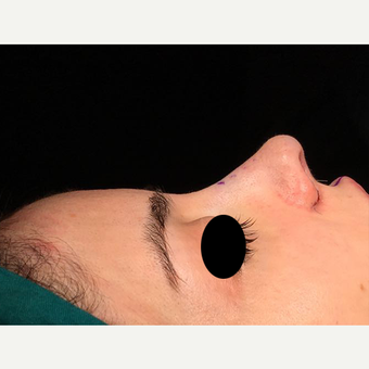 25-34 year old woman treated with Rhinoplasty after 3211380