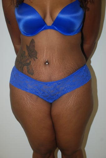 A 40 year old woman requesting abdominoplasty after 819120
