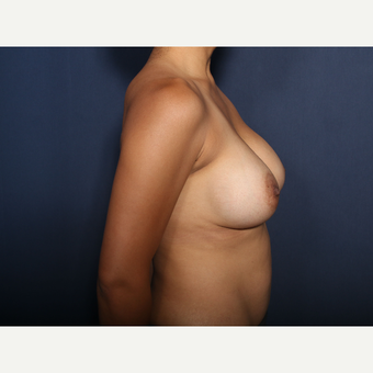 25-34 year old woman treated with Breast Augmentation (view 2 of 2) after 3129715