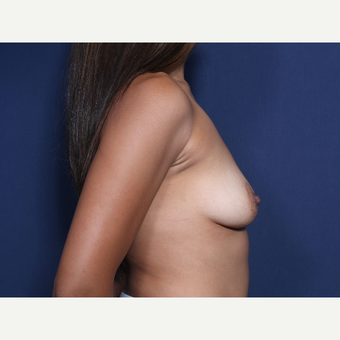 25-34 year old woman treated with Breast Augmentation (view 2 of 2) before 3129715