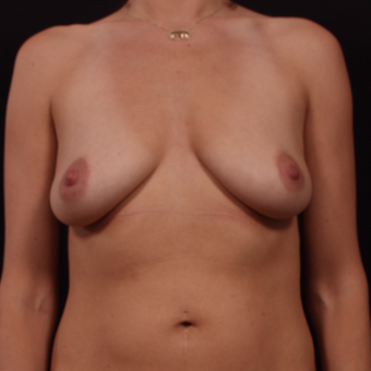 35-44 year old woman treated with Breast Lift with Implants before 3656881