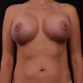 35-44 year old woman treated with Breast Lift with Implants after 3656881