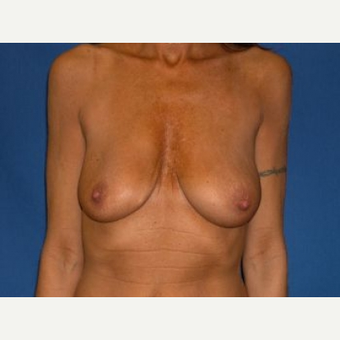 25-34 year old woman treated with Breast Lift with Implants before 3009105