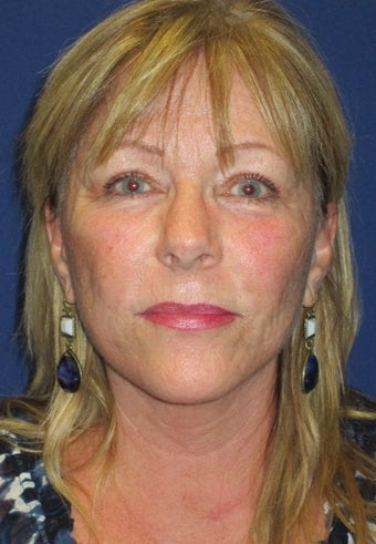 55 year old woman treated with Lower Face Lift, Neck Lift, and Upper Lid Blepharoplasty 1831469
