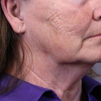45-54 year old woman treated with CO2 Laser and Face Lift before 1901190