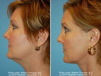 Neck Liposuction before 212293