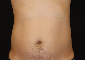 CoolSculpting by zeltiq after 398415