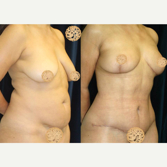 45-54 year old woman treated with Mommy Makeover after 3099695